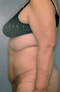 Пластическая операция на сосок груди