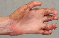 устранение контрактуры пальцев