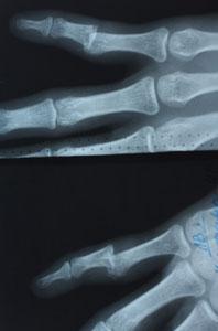 Вывих фаланги пальца