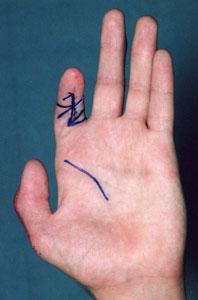 послеоперационная контрактура пальца