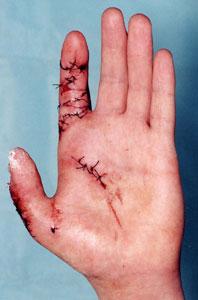устранение послеоперационной контрактуры пальца