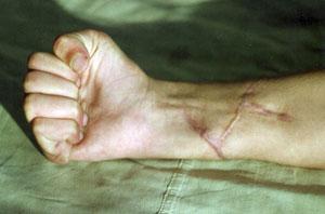 Повреждения сгибателей и нервов предплечья