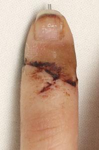 реплантация пальца