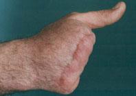 Ампутация пальцев