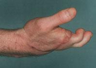 Пересадка пальцев со стопы