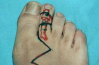пересадка сустава пальца