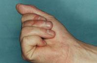 результат пересадки сустава пальца