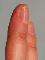 энходрома пальца после операции